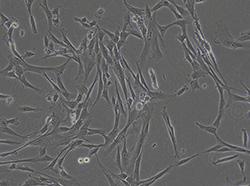 脐血来源人间充质干细胞