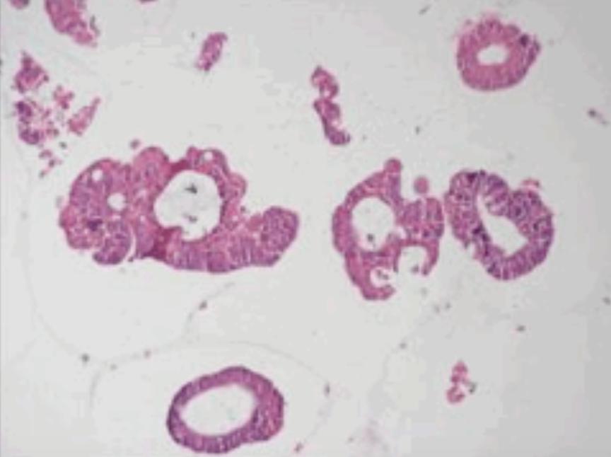类器官(PDO)